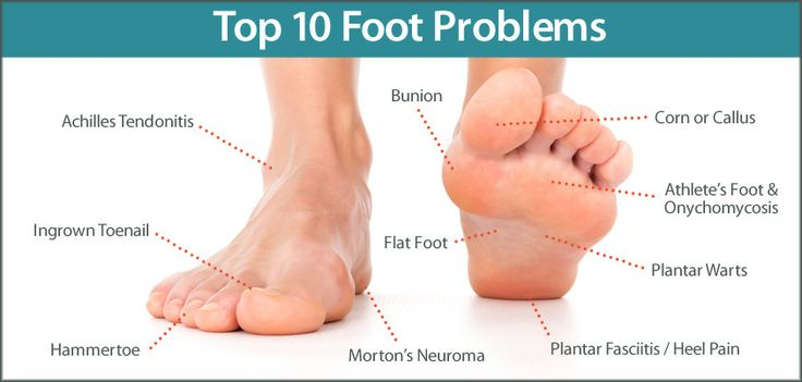 2 feet with top ten foot problems
