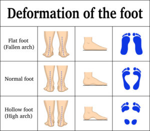 pronation of a foot